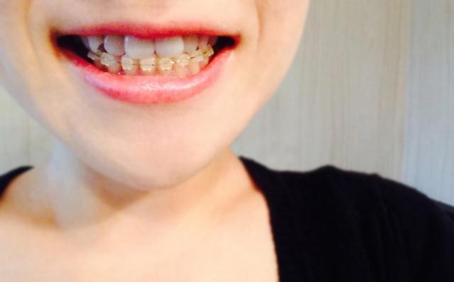 英語で歯の矯正のことを何といいますか? - 確か …